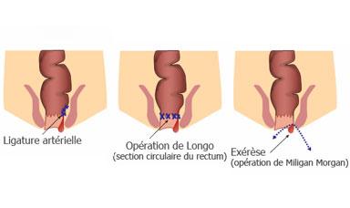 hémoroïdes et Protocologie