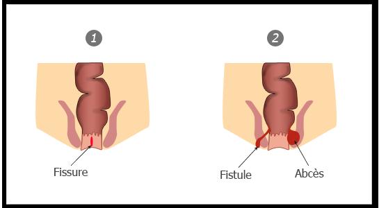 Abcès, fistules et fissures