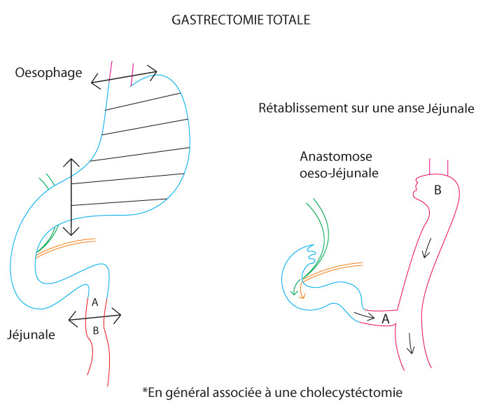 shema-gastrectomie-totale